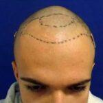 A hajbeültetés folyamata elég időigényes
