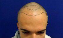 hajbeültetés folyamata